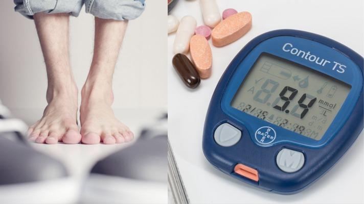 علاج تنميل القدمين لمرضى السكري